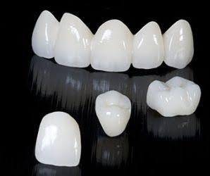 Dentaduras postizas a domicilio